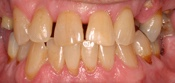 Fixed dentures, partial dentures, ceramic crowns