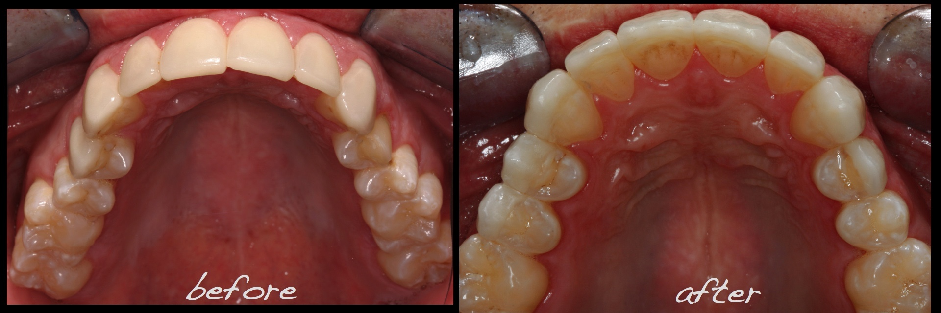 Revised porcelain laminate veneer therapy and associated pre occlsual equilibration.